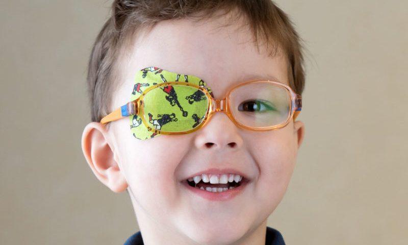 تنبلی چشم در کودکان (Amblyopia)